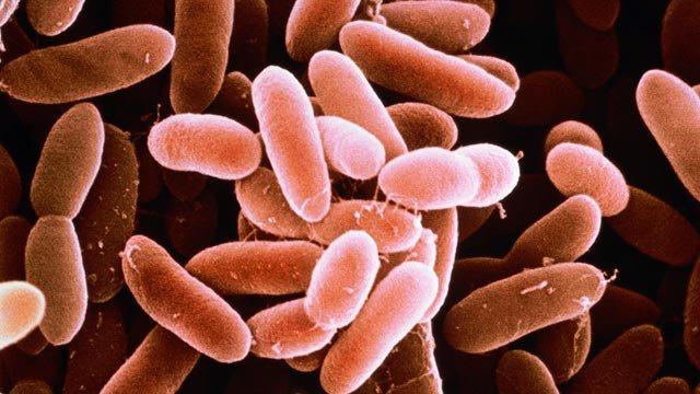 Listeriosi: tredici ammalati e due morti, come evitare la malattia